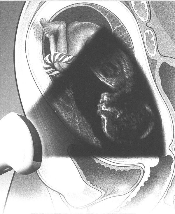 frauenarzt untersuchung abstrich